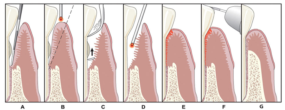 Steps of the LANAP procedure for gum disease treatment.